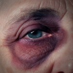 Senior Abuse Attorneys, black eye