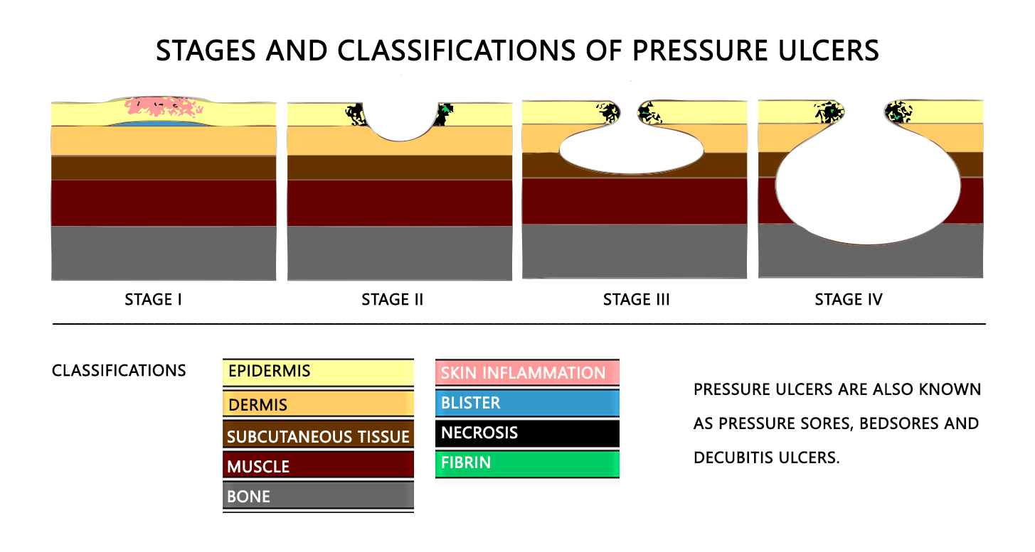 Stages and Classification of Pressure Ulcers