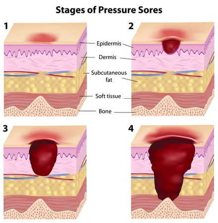 Medical illustration showing the stages of pressure sores.