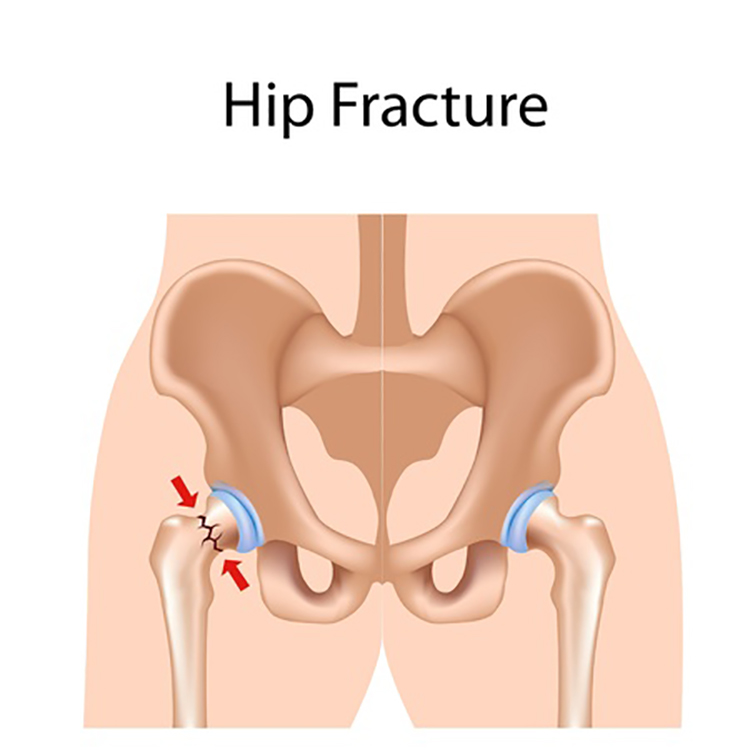 Hip Fractures Accident Lawyers Taunton MA