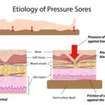 Medical illustration in color showing etiology of pressure sores in the elderly.