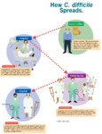 How basteria C. difficile spreads