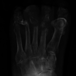 Osteomylitis in bone in foot