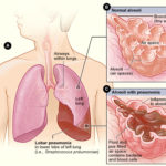 Lobar Pneumonia Medical Illustration - NIH